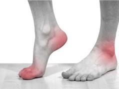 Những bài thuốc dân gian hỗ trợ điều trị bệnh gout hiệu quả