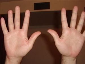 Tại sao con người có 10 ngón tay?