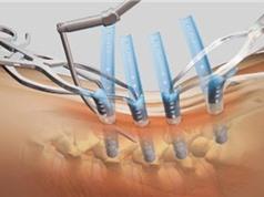 Tổng hợp thành công màng y sinh HAp cho vật liệu chỉnh hình