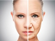 6 biến chứng có thể gặp khi phẫu thuật căng da mặt