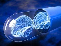Tìm ra phương pháp kích thích não để thay đổi suy nghĩ