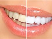 Clip: 10 mẹo hay làm trắng răng bằng nguyên liệu có sẵn trong bếp