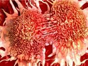 Tế bào biến thành ung thư chỉ qua một bước đột biến đơn giản