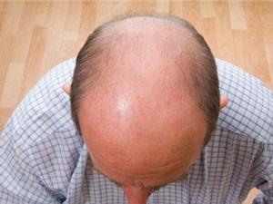 Tổng hợp sinh hóa tạo chất giúp tóc mọc lại