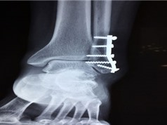 Điều trị gãy xương bằng cách cấy ghép vật liệu in 3D