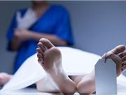 Những biến đổi kỳ lạ của cơ thể người sau khi chết