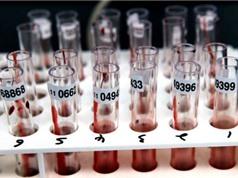 Một xét nghiệm máu có thể phát hiện tám bệnh ung thư