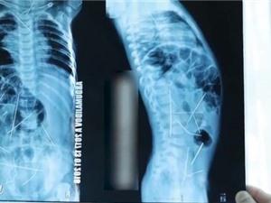 Tá hỏa phát hiện 16 cây kim khâu trong cơ thể bé 11 tháng tuổi