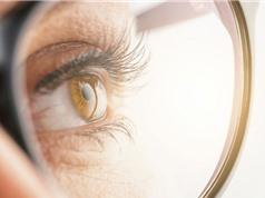 Chữa cận thị, viễn thị bằng thuốc nhỏ mắt