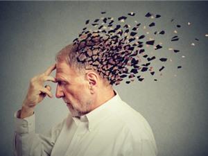 Nghiện rượu bia là yếu tố nguy cơ lớn nhất dẫn đến mất trí nhớ