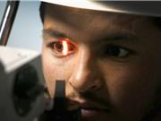 Thuật toán AI mới của Google dự đoán bệnh tim mạch bằng ảnh chụp đôi mắt