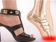 Giày cao gót ảnh hưởng xấu tới xương khớp và dáng đi