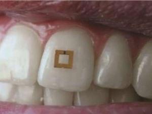 Bộ cảm biến gắn trên răng giúp theo dõi chế độ ăn uống