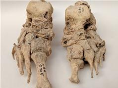 Phát hiện bệnh phong có nguồn gốc từ châu Âu
