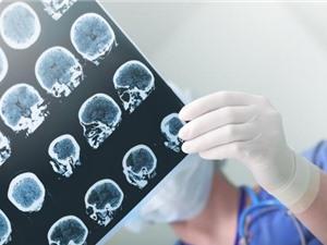 Phát hiện loại thuốc giúp giảm tử vong do đột quỵ