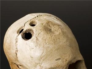 Phẫu thuật khoan sọ đã xuất hiện từ 5.000 năm trước