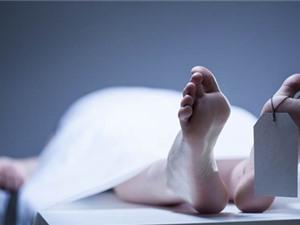 [Infographic] Những biến đổi của cơ thể người sau khi chết