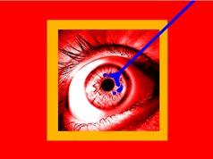 Robot phẫu thuật mắt cho người