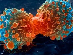 Số lượng bệnh nhân ung thư tăng lên 1/3 sau một thập kỷ