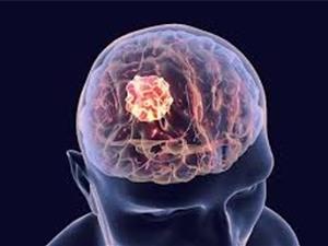 Phát hiện thuốc trị chứng sốc độ cao hữu ích cho các bệnh nhân u não