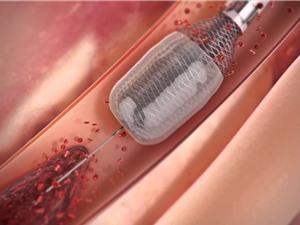 Thiết bị này sẽ loại bỏ các cục máu đông một cách an toàn