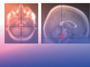 Nhật Bản thử nghiệm lâm sàng phương thức điều trị Parkinson