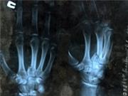 Vật liệu xốp 3 chiều bằng polimer thay đổi cách điều trị gãy xương