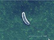 """Biến đổi khí hậu và sự sinh sôi của """"vi khuẩn ăn thịt người"""""""