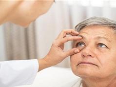 Mối liên hệ đặc biệt giữa bệnh Alzheimer và các bệnh về mắt