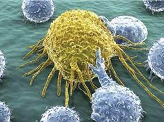 Phát hiện hóa chất mới tiêu diệt tế bào ung thư não