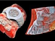 [Video] Công nghệ chụp X-quang màu 3D cơ thể người