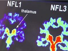 Thiết bị phân tích não bộ có thể giết chết nhiều giấc mơ nghề nghiệp