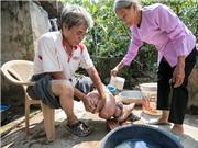 Việt Nam đã loại trừ bệnh phù chân voi