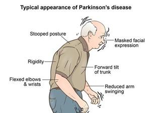 Tiêm tế bào gốc vào não có thể chữa được bệnh Parkinson?