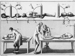 Frankenstein: Những thí nghiệm có thật đã truyền cảm hứng cho khoa học viễn tưởng