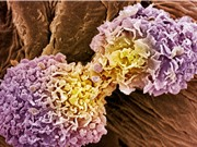Phương pháp mới phát hiện ung thư trong 10 phút