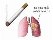 Tiến trình phục hồi của phổi sau khi ngừng hút thuốc