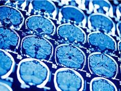 Xây dựng mô hình gene não người