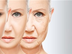 Phụ nữ sống thọ hơn đàn ông là nhờ có 2 nhiễm sắc thể X?