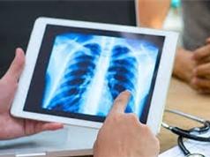 Phát hiện thuốc ngừa ung thư vú có thể giúp chống lại ung thư phổi