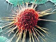 Phát hiện phương pháp mới ngăn chặn tế bào ung thư phát triển