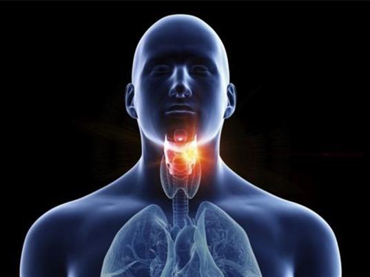 Đau họng dai dẳng có thể là dấu hiệu ung thư