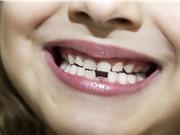 Chẩn đoán các vấn đề sức khỏe tâm thần ở trẻ em qua răng