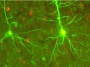 Phát hiện hình thức giao tiếp thần kinh hoàn toàn mới