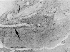 Phát hiện hoá thạch giun 500 triệu năm tuổi dưới đáy biển cổ đại