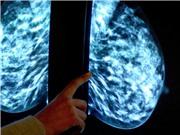 Xét nghiệm mới dự đoán khả năng tái phát ung thư trong 20 năm