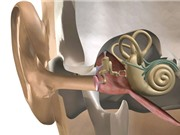Ca phẫu thuật thay xương tai giữa đầu tiên trên thế giới