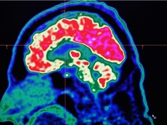 Những gì có hại cho tim cũng có hại cho não