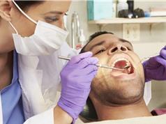 Giảm nguy cơ ung thư vòm miệng nhờ chỉ nha khoa