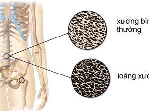 Bổ sung lợi khuẩn giúp giảm loãng xương